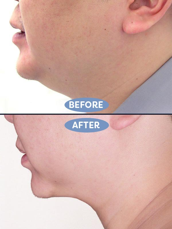 the rhytidectomy procedure has advanced over the years producing beautiful results dr weinberg is able make the face tighter and smoother for a youthful