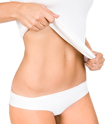 ABDOMINOPLASTY – BEFORE AND AFTER SURGERY